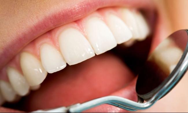 تجويف الأسنان