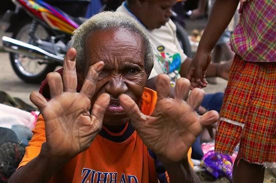 قطع الأصابع في إندونسيا.. أغرب طقوس الحزن في العالم