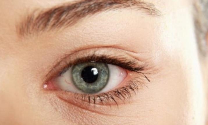 صورة سبب ظهور التجاعيد حول العين