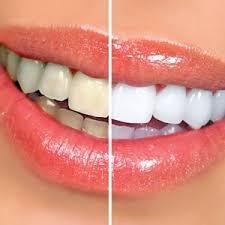 تغير لون الاسنان