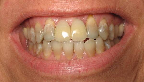 صورة أسباب لـ تغير لون الاسنان من الابيض الى الاصفر