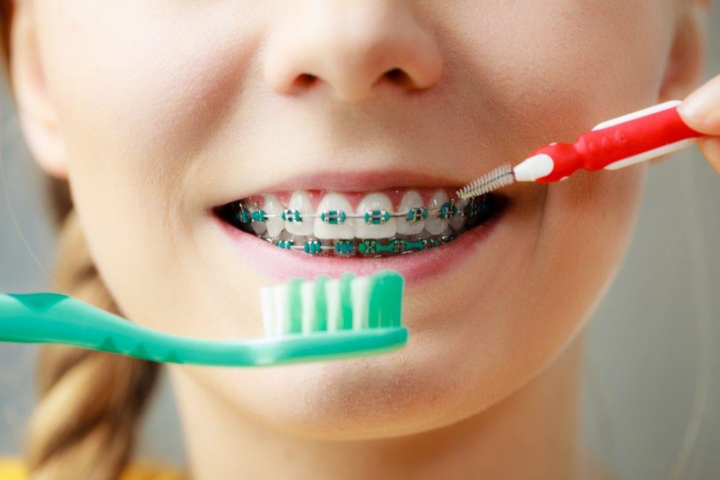صورة طريقة تنظيف تقويم الاسنان