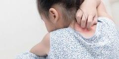 أسباب ظهور حبوب في الجسم كقرص الناموس وكيفية علاجها