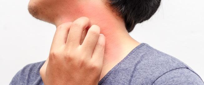 اسباب وعلاج ظهور حبوب في الجسم مع حكة