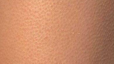 علاج جلد الوزة