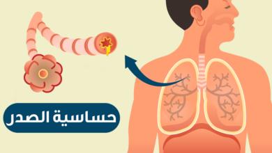 صورة اسماء ادوية حساسية الصدرية عند الكبار وعلاج الحساسية الصدرية والكحة بالأعشاب