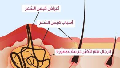 صورة الناسور العصعصي المفتوح | أعراض الإصابة بالناسور العصعصي
