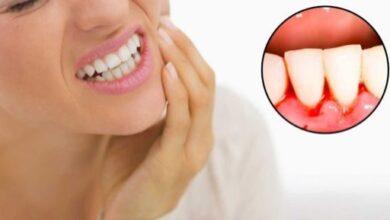 صورة تفسير الاحلام للامام الصادق الاسنان