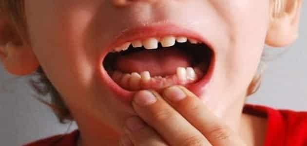 تفسير الاحلام للامام الصادق الاسنان