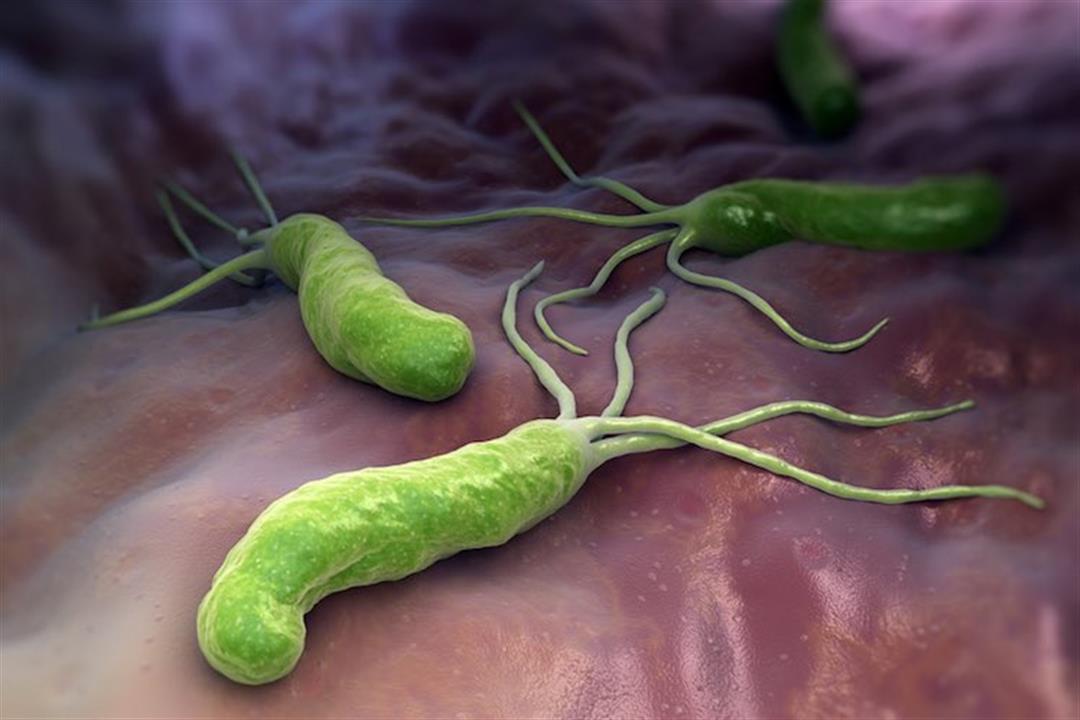 اعراض جرثومة المعدة في البراز | علاج جرثومة المعدة بالأعشاب