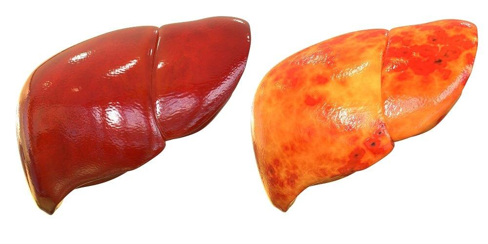 تجربتي مع دهون الكبد وكيفية علاجها وتنظيف الكبد من السموم المتراكمة نهائيا 9
