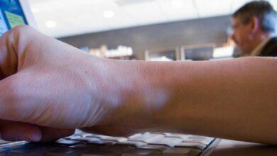 صورة علاج الكيس الزلالي بدون جراحة | الطب النبوي لعلاج الكيس الزلالي