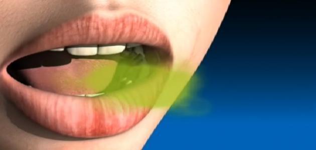 علاج رائحة الفم الكريهة عند الأطفال بالأعشاب