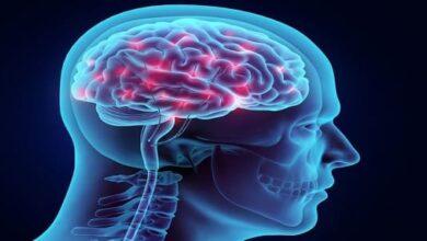 صورة اعراض نقص الاکسجین في الدماغ وعلاج نقص الدم في الدماغ