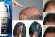 افضل بخاخ لانبات الشعر وتكثيفه