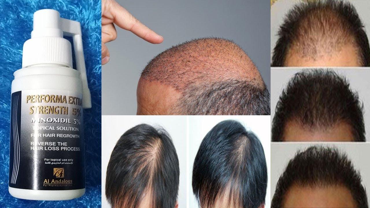 افضل بخاخ لانبات الشعر وتكثيفه | للنساء والرجال