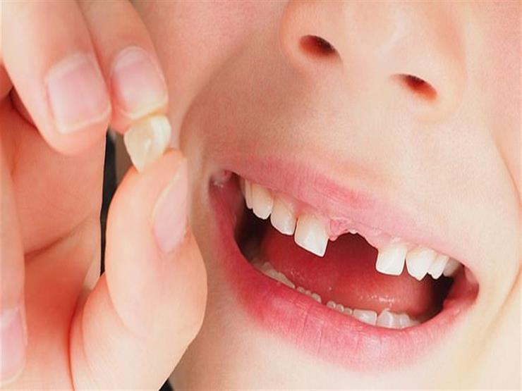 تفسير حلم سقوط الاسنان