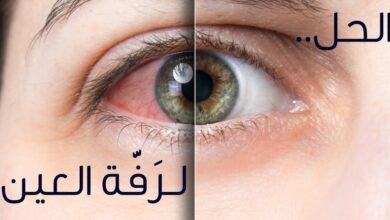 رفة العين اليسرى